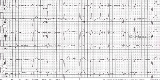 Rsr Pattern Ecg With an Rsr' Pattern in v1